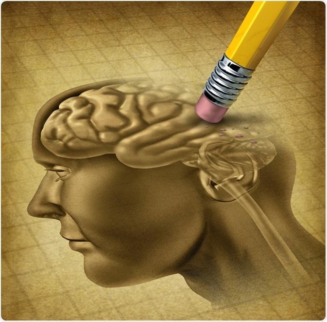 Alzheimer's Association and dementia